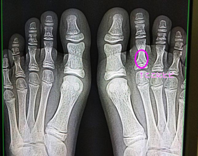 右足の人差し指にヒビ